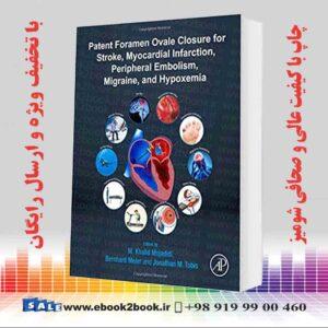 خرید کتاب پزشکی اختراع ثبت اختراع فورامن اووال برای سکته مغزی ، انفارکتوس میوکارد ، آمبولی محیطی ، میگرن و هیپوکسیمی