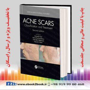 کتاب Acne Scars: Classification and Treatment, 2nd Edition