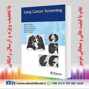 خرید کتاب پزشکی Lung Cancer Screening 1st Edition